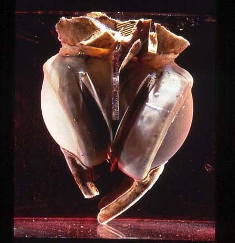 corazon artificial