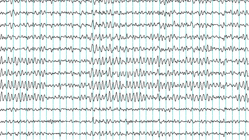 Cu nto cuesta un estudio de electroencefalograma en espa a for Cuanto cuesta un segway