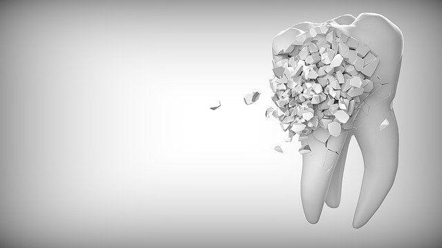 Implantología dental avanzada